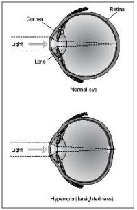 What is long sightedness?