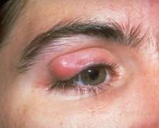 Chalazion is rounder and harder