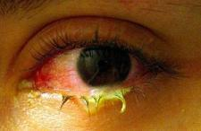 Contact Lens Wearer Frequently Experience Dry Eyes