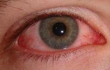 Eye irritation