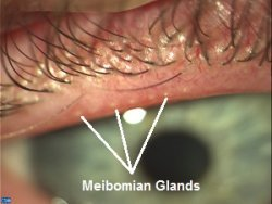 Causes of eye stye: Clogging of Meibomian Gland