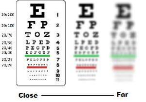Vision of nearsighted people
