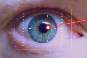 No touch laser eye surgery