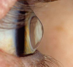 See how conical the cornea is?