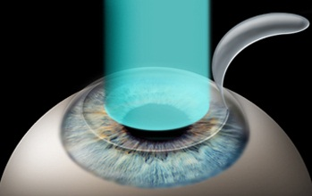 Image result for Refractive Surgery
