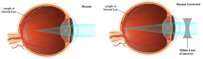 Curing Nearsightedness with Corrective Lens. The Goods and the Bads