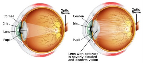 Lens with Cataracts