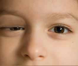 Ptosis in the right eyelid