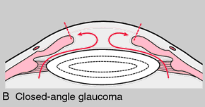 Angle-Closure Glaucoma