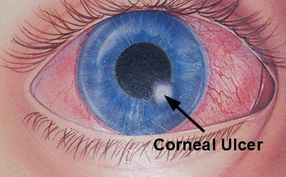 Corneal Ulcer Causes Treatment And Prevention