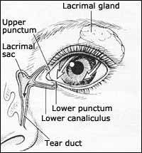 dry eye treatment  what is available