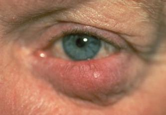 Eye affected by rosacea