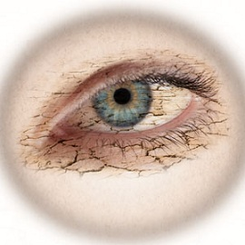 Danger of Contact Lens: Dry Eye