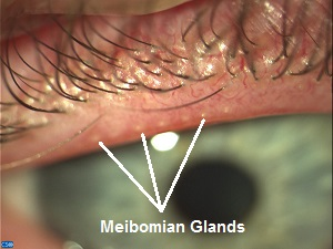 Eye Stye: What Causes Blockage Of Meibomian Glands, Symptoms And ...