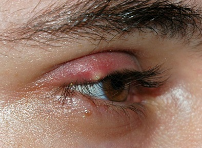 Common Eyelid Problems