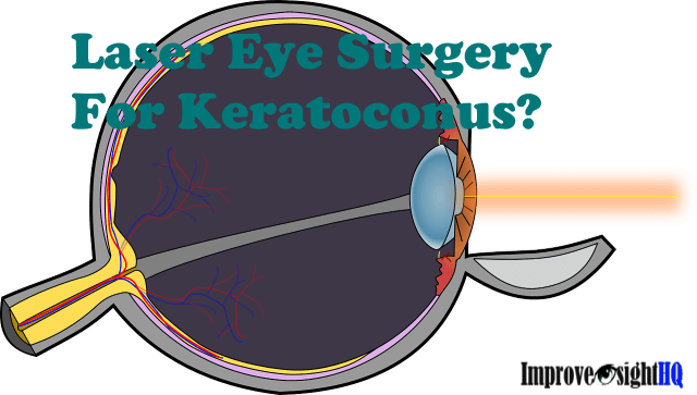 Laser Eye Surgery For Keratoconus