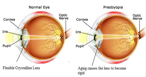 Image result for Presbyopia