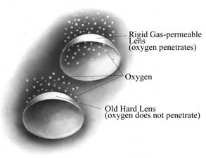 Rigid Gas Permeable Contact Lens