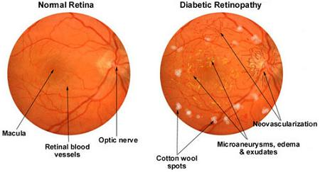 Difference between normal eye and eye with diabetic retinopathy