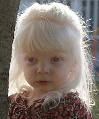 Children with Albinism
