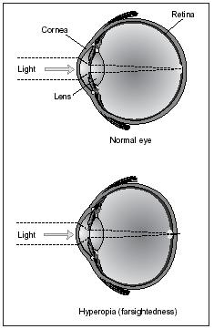 Difference between farsightedness and healthy eye