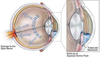 Laser eye surgery for glaucoma