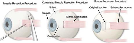 Resection Procedure